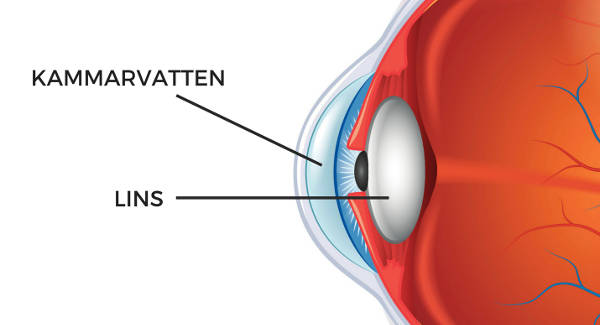 Blodsockret påverkar styrkan på glasögon