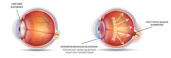 diabetes ökar risken för glaukom och grå starr