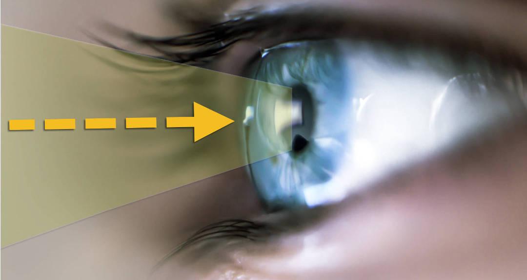e5f64f668790 Om torra ögon - Medicinsk Optik
