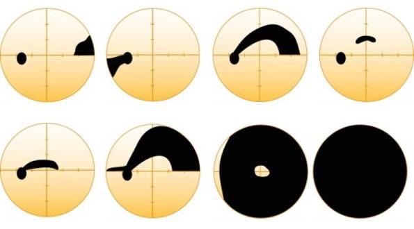 Olika grader av glaukom