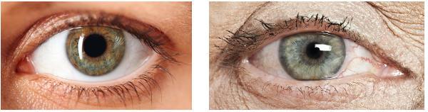 Pupillen minskar med åldern