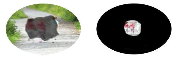 synen med amd och glaucom