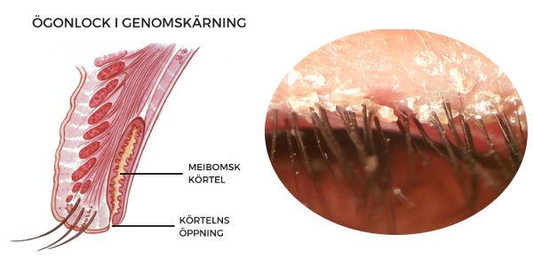 Meibomska körtlarna och hur dom täpps till av blefarit