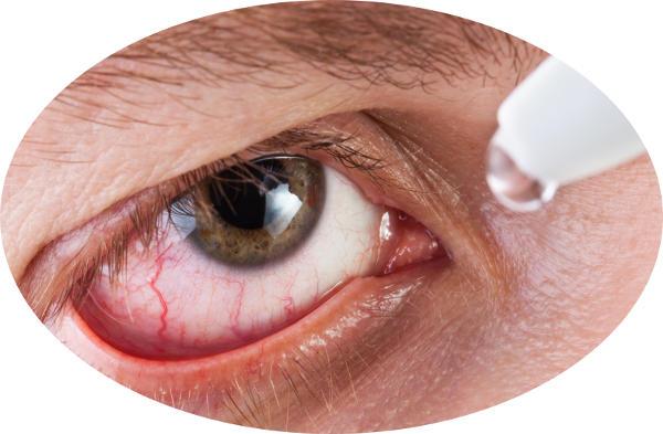 droppar torra ögon med ögondroppar