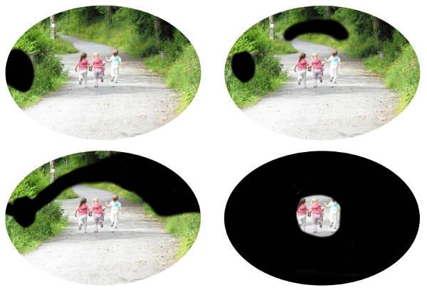 glaukom börjar ofta i ytterkanten