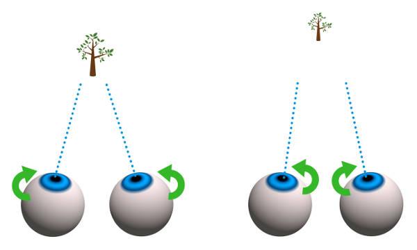 Barn med plötsligt sämre syn behöver kontrolleras