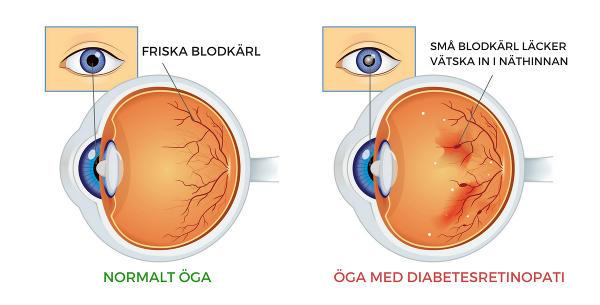 öga med diabetesretinopati som ger blödningar på näthinnan