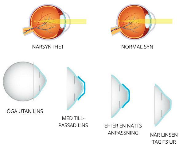 nattlinser - hur dom omformar hornhinnan