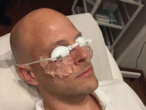 patient förbereds för behandlng med IPL